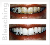 Miami Dental - Bleaching